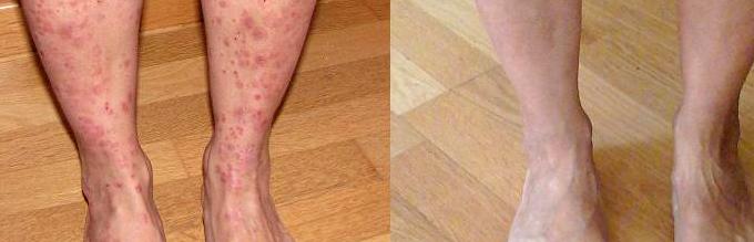 Los análisis a atopicheskim las dermatitis